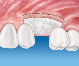 Mucograft_Implantat_1